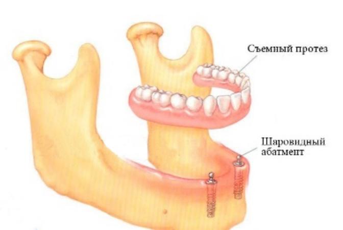 Покрывной зубной протез с кнопочным типом фиксации