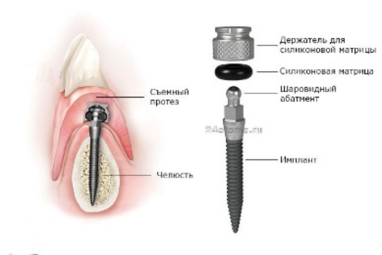Схема фиксации съемного зубного протеза на имплантах (при надевании протеза шаровидный аттачмент, проникая сквозь кольцевой аттачмент, удерживается последним)